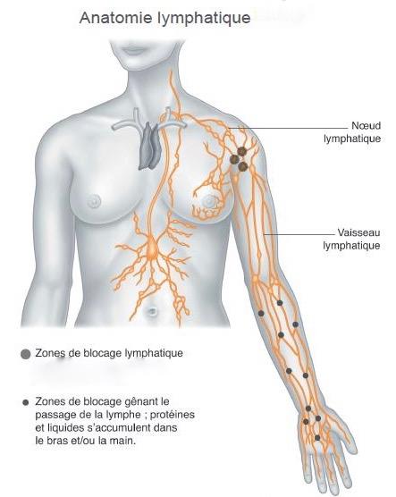 lymphoedeme-bras